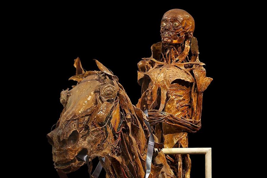 Музей анатомии в Париже